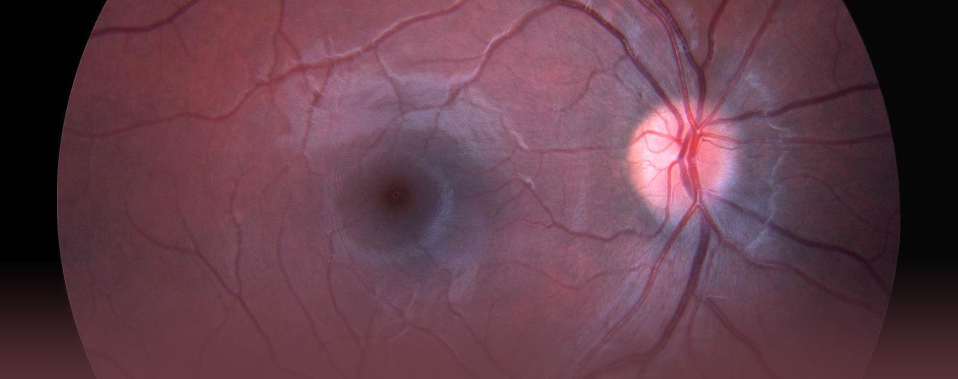 Slide Image for Northern California Retina Vitreous Associates